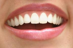 Gum Disease Manhattan